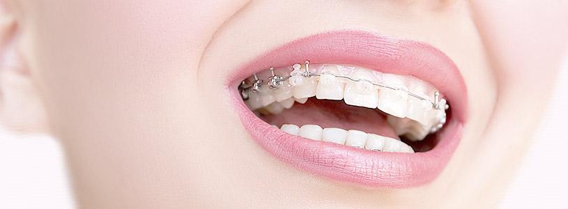 Imagem Ortodontia